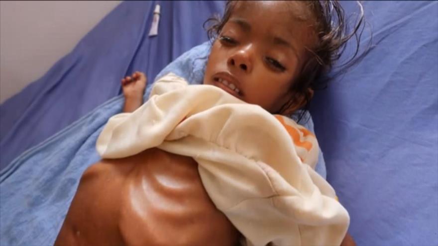 Los niños yemeníes siguen muriendo por malnutrición | HISPANTV