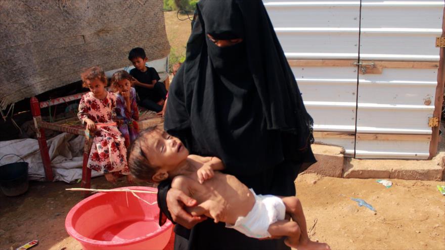 Un niño yemení desplazado que sufre de desnutrición con su madre en un campamento en Hajjah (noroeste), 3 de septiembre de 2020. (Foto: AFP)