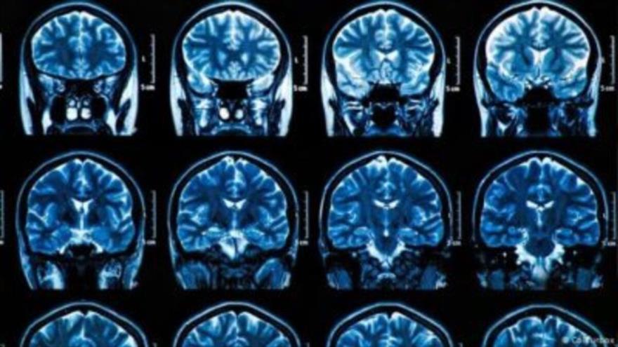 Descubren que COVID-19 podría envejecer el cerebro ¡hasta 10 años! | HISPANTV