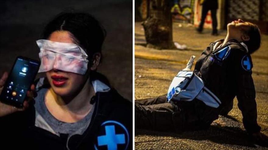 "Profesora chilena sufre ""ceguera temporal"" por ataque de policías"