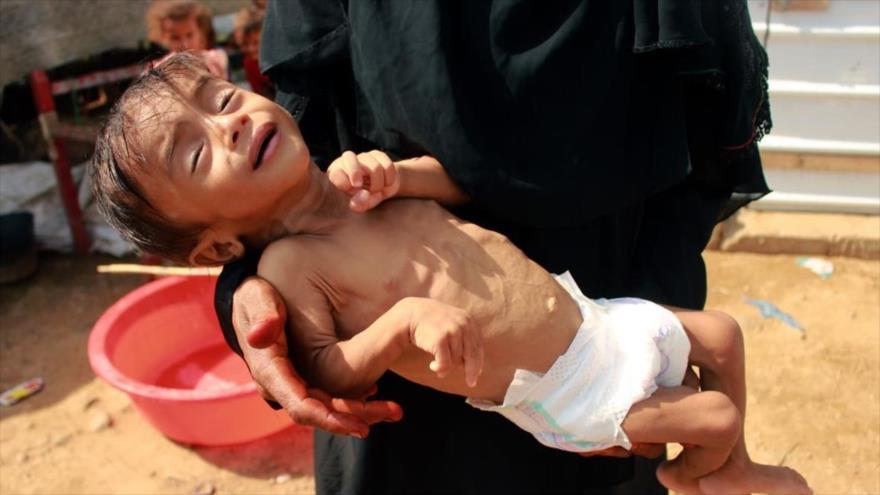 Niño yemení con la desnutrición aguda que no puede llegar a un hospital para recibir tratamiento en el norte de Yemen, 3 de septiembre de 2020. (Foto: AFP)