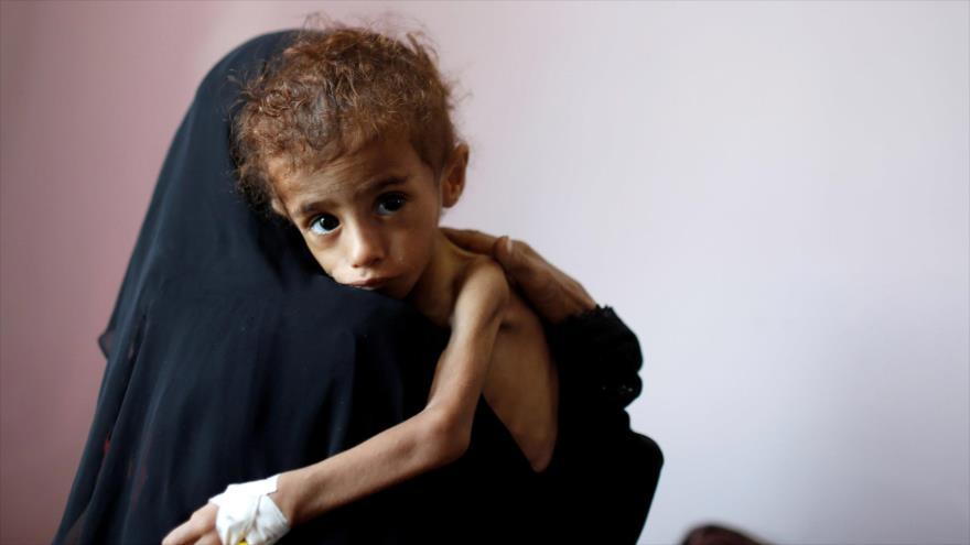 Diplomático iraní: agresión a Yemen no tendrá ningún resultado | HISPANTV