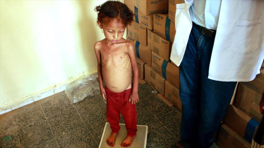 ONU: Yemen, al borde de la peor hambruna en el mundo en décadas