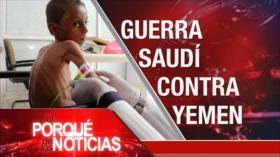 El Porqué de las Noticias: No al expansionismo israelí. Hambruna en Yemen. Crisis política en Perú