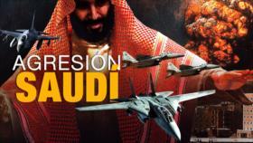 Detrás de la Razón: Guterres asegura que Yemen se podría convertir en el peor desastre humanitario
