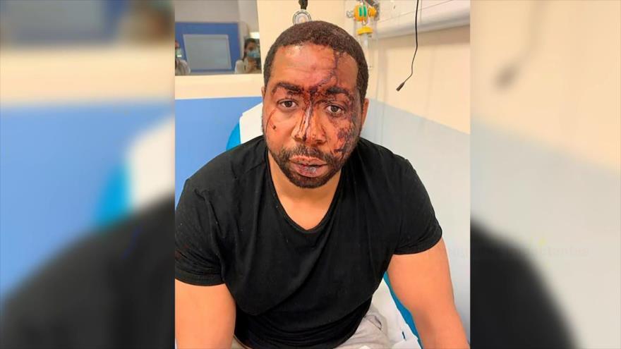 Violencia policial contra un productor negro sacude Francia