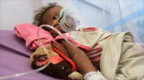 """""""Cada 10 minutos, un niño muere en Yemen por la agresión saudí"""""""