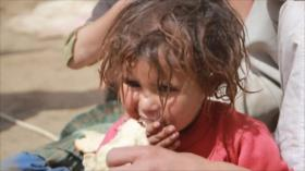 Malnutrición de niños yemeníes, una secuela de la agresión saudí