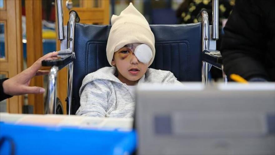 Malek Isa, niño palestino que perdió un ojo por el disparo de una bala con punta de esponja durante una represión de las fuerzas israelíes en Al-Quds.