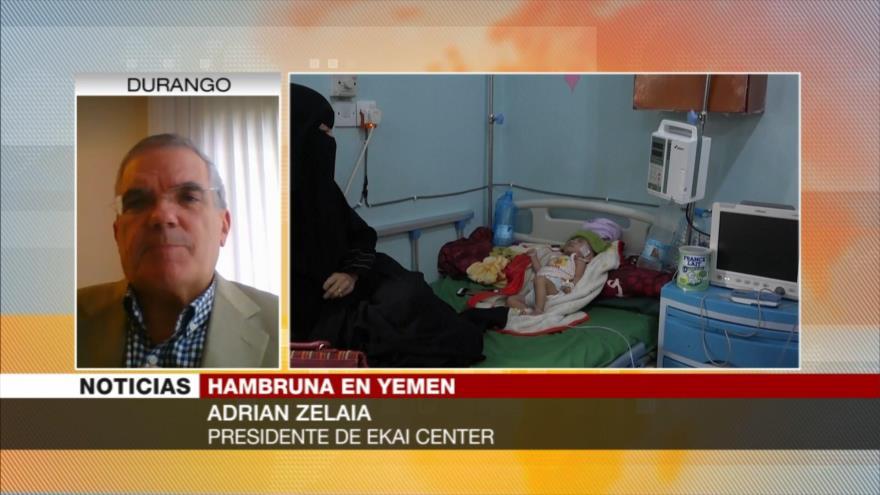 'Yemen es atacado por encarar al núcleo hegemonista de la región'