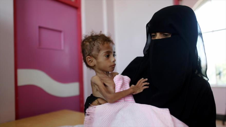 ONU: Mitad de los yemeníes sufre inseguridad alimentaria aguda