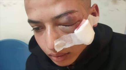 Menor palestino herido en un ojo por disparo de fuerzas israelíes