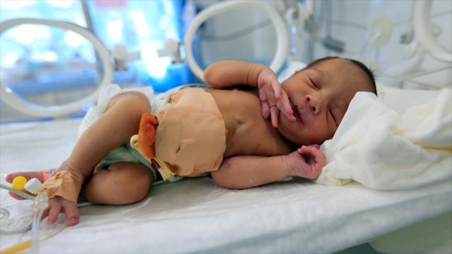 Mueren cada año 100 000 recién nacidos en Yemen por bloqueo saudí | HISPANTV