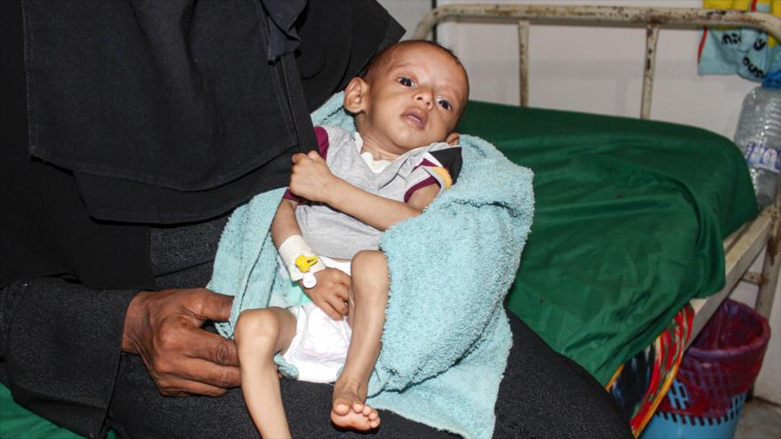 Impactante cifra: 4000 niños yemeníes muertos en ataques saudíes   HISPANTV