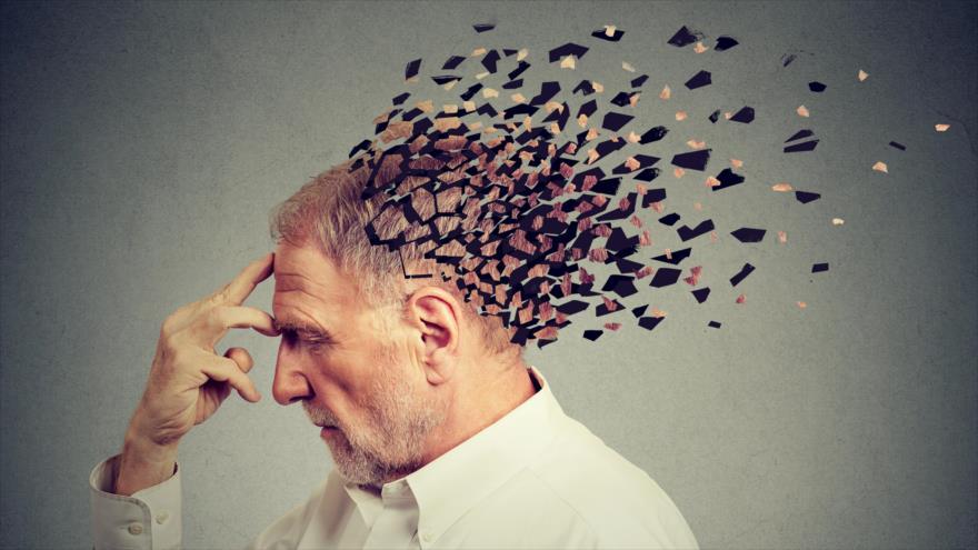 Una imagen representativa de una persona que padece de la enfermedad de Alzheimer.