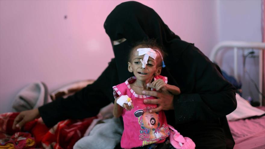 Una mujer sostiene a su hija desnutrida en un hospital en Saná, capital de Yemen, 27 de octubre de 2020. (Foto: Reuters)