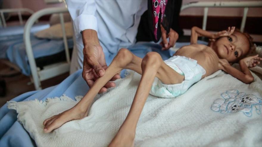 Una médica atiende a un bebé yemení que sufre desnutrición aguda.