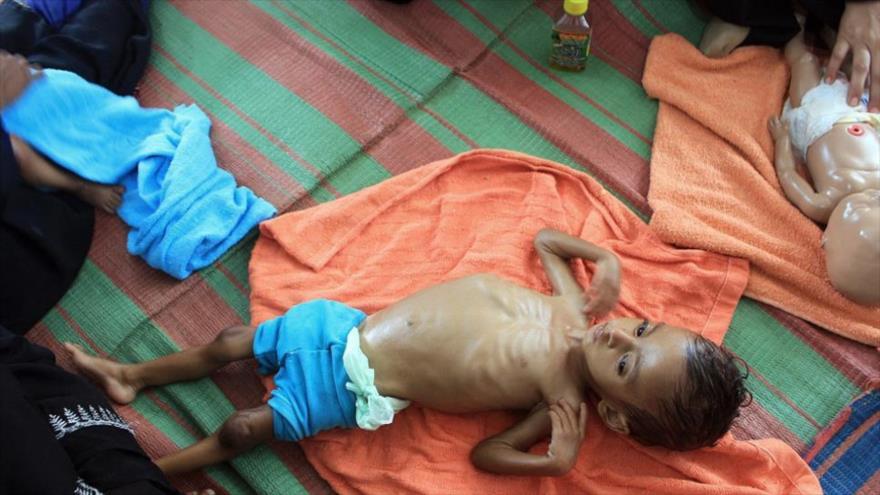 Así advierte la ONU sobre la situación de Yemen: Es un infierno | HISPANTV