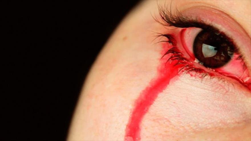 Una mujer india llora sangre durante su menstruación.