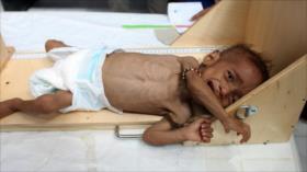 ¿Guerra biológica en Yemen?: Se dispara cifra de enfermos con cáncer