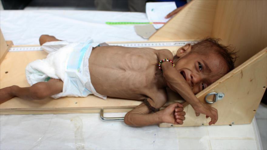 Un niño yemení llora en un hospital en la provincia noroccidental de Hajjah, 11 de noviembre de 2018. (Foto: AFP)