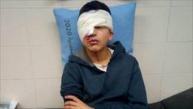 Vídeo: Niño palestino queda ciego por disparo de tropas israelíes