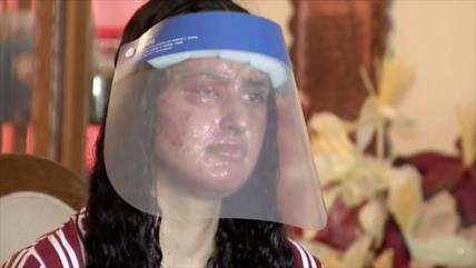 Una joven musulmana es víctima de ataque con ácido en EEUU