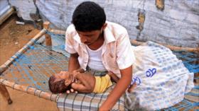 ONU: El hambre atacó a 155 millones de personas en 2020