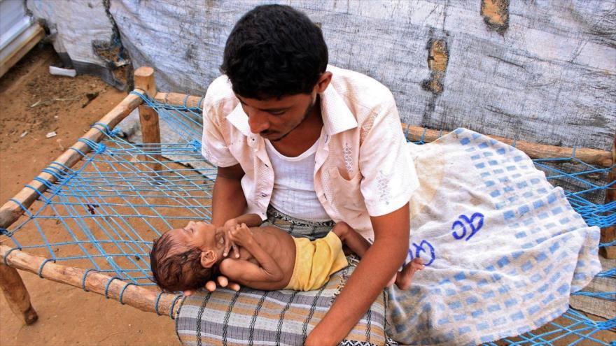 ONU: El hambre atacó a 155 millones de personas en 2020   HISPANTV