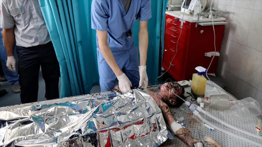 Una niña palestina herida en el hospital Al-Shifa después de un ataque aéreo israelí en la ciudad de Gaza, 11 de mayo de 2021. (Foto: AFP)