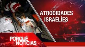 El Porqué de las Noticias: Crímenes de Israel. Diálogo en Venezuela. Negociaciones Argentina-FMI
