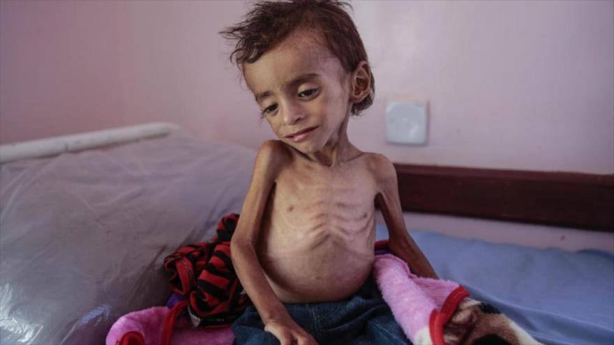 'Llegada de alimentos es derecho incondicional de yemeníes' | HISPANTV