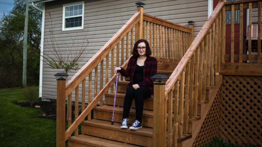 Gabrielle Cormier es una de las pacientes más jóvenes de esta enfermedad, Nuevo Brunswick, Canadá. (Foto: New York Times)