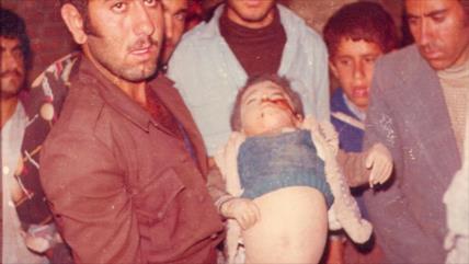 Irán denuncia: EEUU está matando a víctimas de ataques químicos