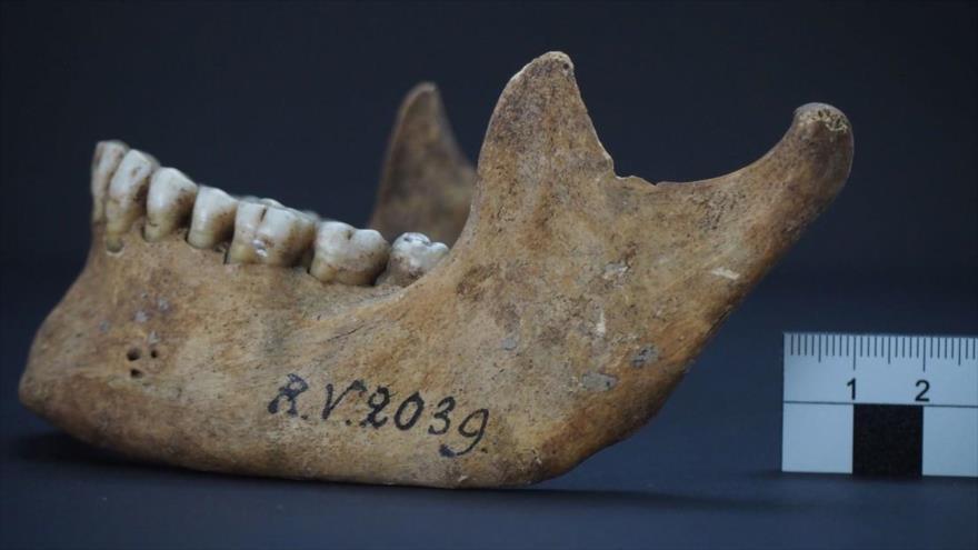 Descubren la plaga que causó la peste negra hace 5000 años | HISPANTV
