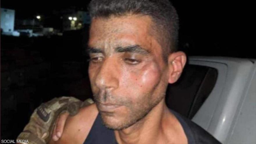 Señales de torturas en la cara del preso palestino Zakaria al-Zubaidi tras su nueva, 11 de septiembre de 2021. (Foto: Wafa)