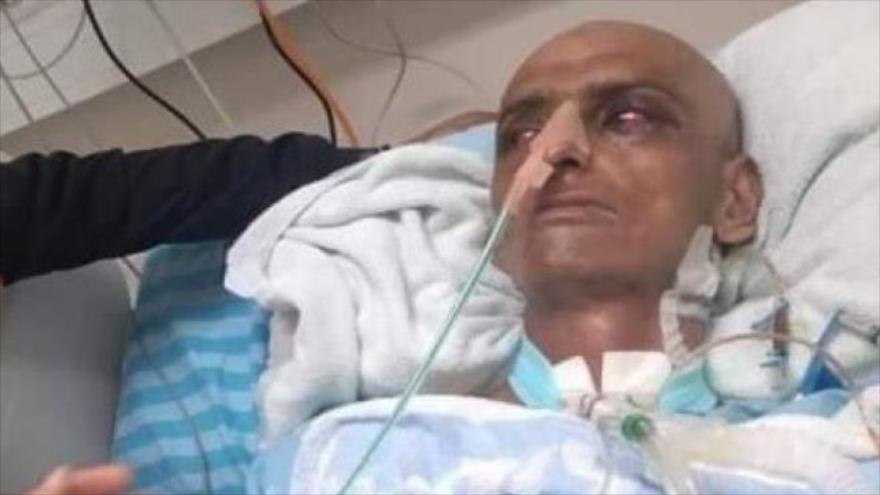El fallecido preso palestino liberado, Husein Masalmeh.