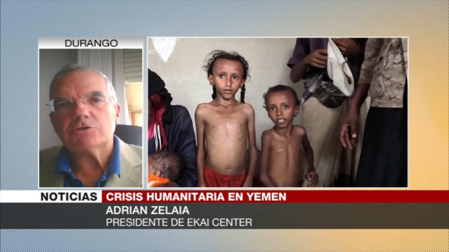 Zelaia: Occidente intenta ocultar crisis humanitaria que vive Yemen